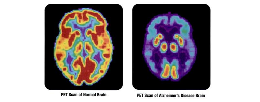 Selectively Targeting Alzheimer's Disease's Root Cause Is Key, Biotech Says